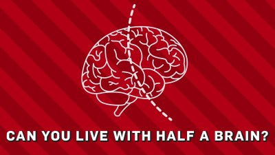 can you live with half a brain?