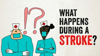 what happens during a stroke