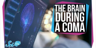 What Happens in the Brain During a Coma?