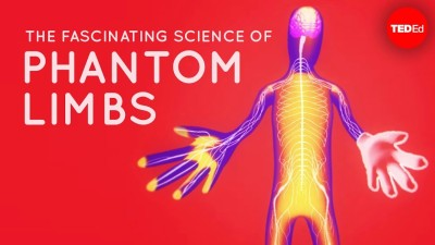 The fascinating science behind phantom limbs