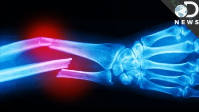 How Much Force Does It Take To Break A Bone?