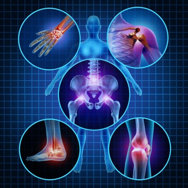 Exercises for Psoriatic Arthritis