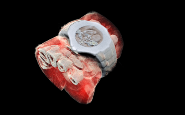 3D color x-ray of a wrist showing part of the finger bones in white and soft tissue in red.