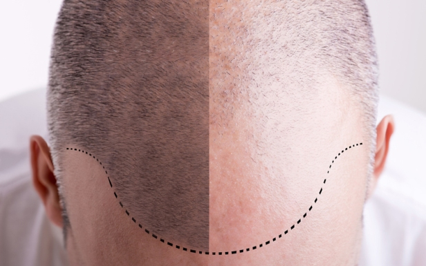 Cause Of Gray Hair And Baldness