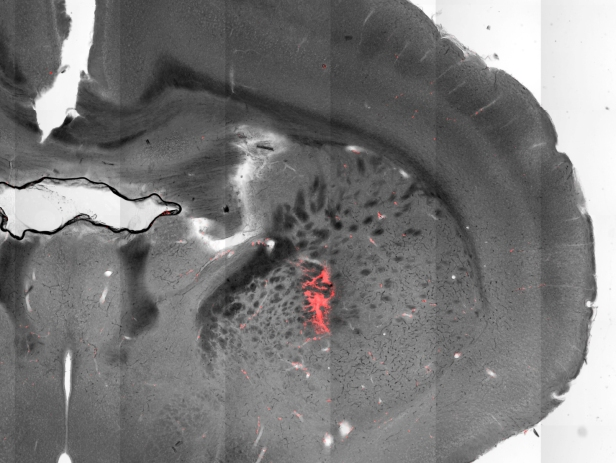 A section of a mouse brain with injected magnetic nanoparticles (red) covering targeted cells in the striatum